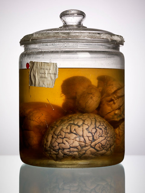 Down-Syndrome, Adam-Voorhes, Brain, Brain-in-a-jar, Young-Frankenstein, Abby-Normal