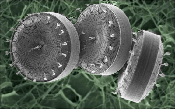"According to Livescience ""this microbe is a chain-forming diatom that acts as a food source for newly hatched fish. It belongs to the genus Thalassiosira and was the first singe-celled algae to have its genome sequenced."" © Laura Lubelczyk, Bigelow Laboratory of Ocean Sciences"