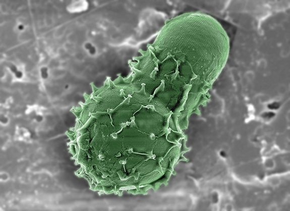 This mysterious green microbe baffles Scientists who believes that it may be a dinoflagellate shell or it might even be a small piece of pollen from the shore. © Laura Lubelczyk, Bigelow Laboratory for Ocean Sciences