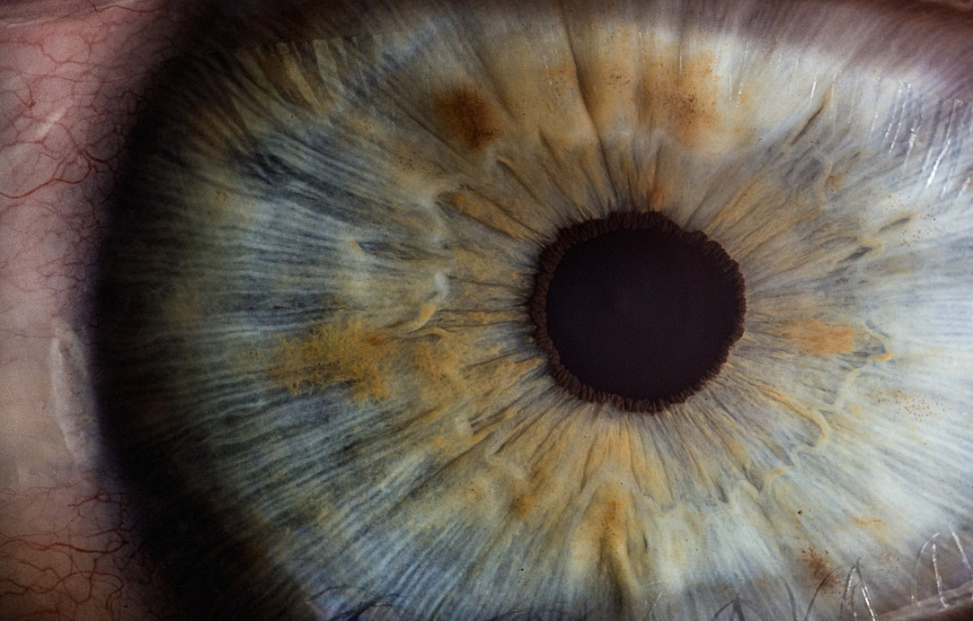 Google software uses eye scan to detect health risks